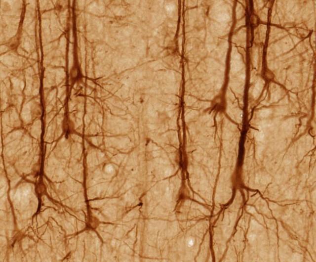 Smi32neuron